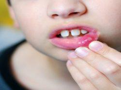 إضطرابات الفم والحلق