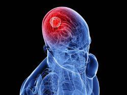 أورام المخ و الأعصاب